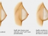 como-escolher-a-protese-de-silicone-ideal-14