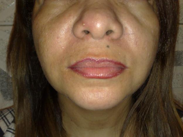 Tratamento de um acne em uma cara do recém-nascido
