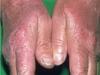 tipos-de-alergia-na-pele-11