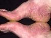 tipos-de-alergia-na-pele-12