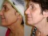 tratamento-para-flacidez-do-rosto-15