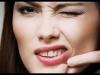 tudo-sobre-a-maquiagem-asepxia-8
